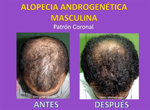 Las vitaminas para los cabellos el pinchazo intramuscular