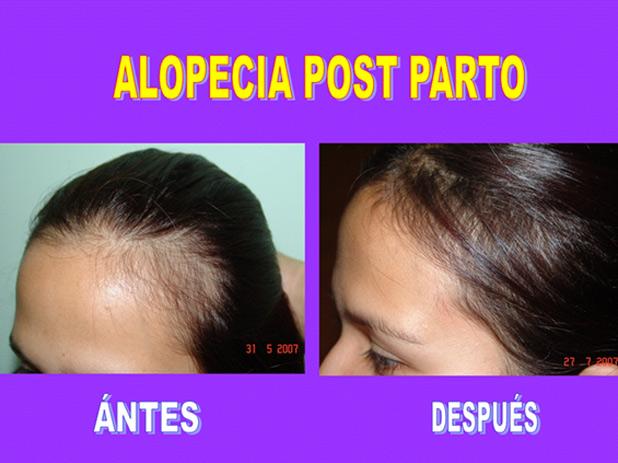 Las frutas para el tratamiento de los cabello