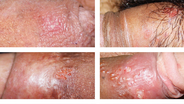 herpes simple pene