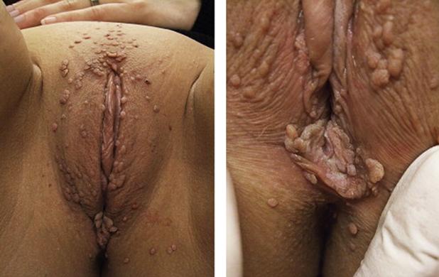ВПЧ на гениталиях и в промежности